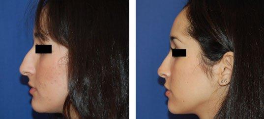 Photo avant /après de rhinoplastie