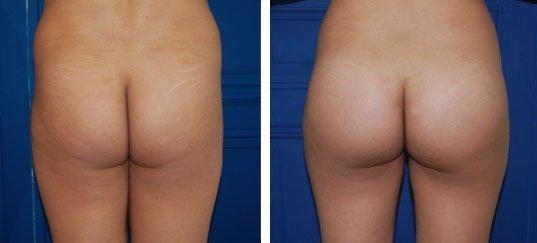 Cas 1 : chirurgie des fesses (face)