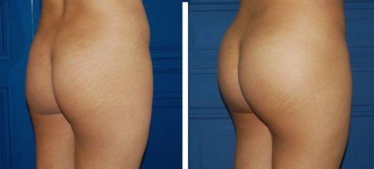 Cas 1 : chirurgie des fesses (trois quart)