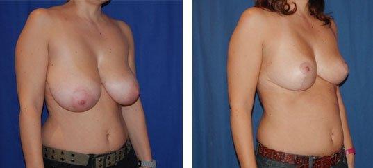 Photo avant /après de réduction des seins