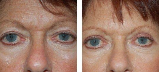 Photo avant /après de chirurgie des paupières supérieures