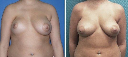 Photo avant / après de lipofilling  des seins chez une femme