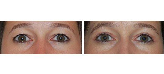 Photo avant / après de chirurgie des paupières supérieures chez une femme