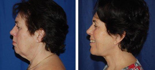 Lifting cervico facial avant / après
