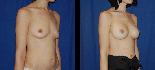 Photo avant /après d'augmentation mammaire par prothèses