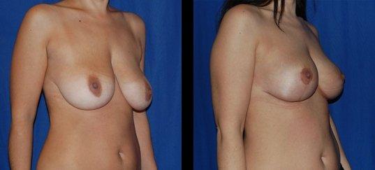 Photo avant /après de lifting des seins