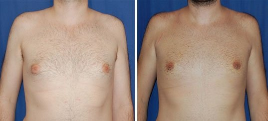 Photo avant / après gynécomastie