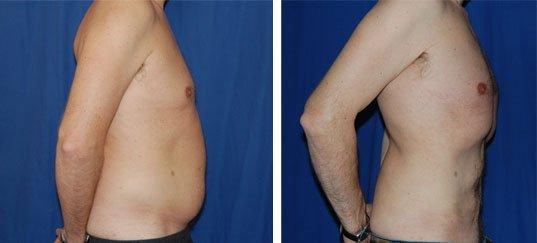 Photo avant / après de lipostructure chez un homme