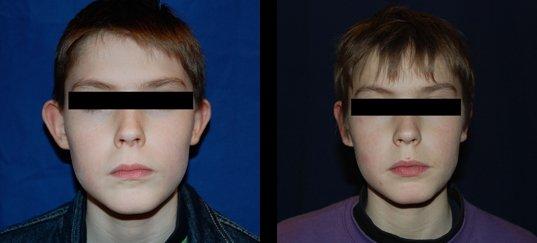 Photo avant /après chirurgie des oreilles chez l'enfant