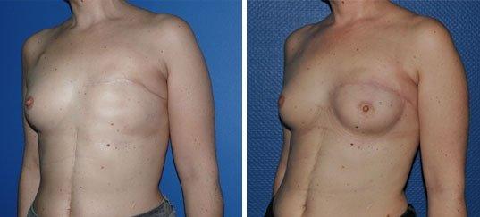 Photo avant / après de reconstruction du sein par prothèses