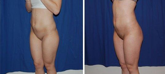 Photo avant / après de lipostructure de la silhouette chez une femme