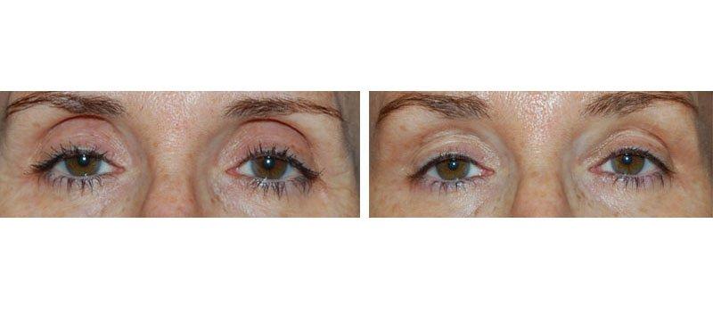 Photo avant /après traitement de l'oeil creux par injections d'acide hyaluronique