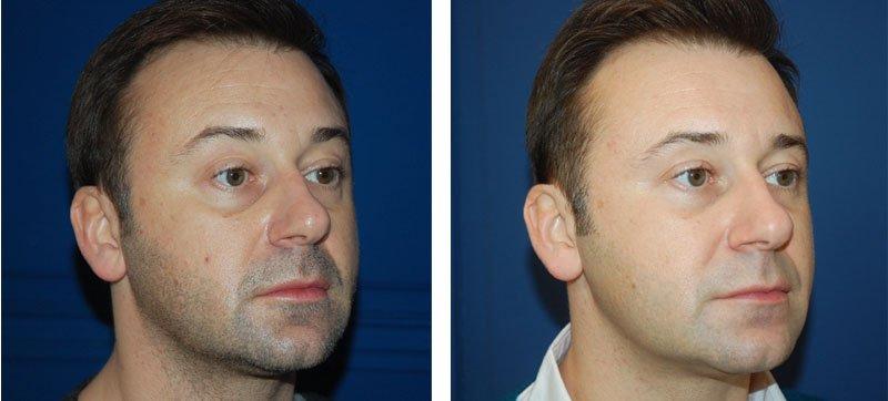 Photo avant /après de traitement des cernes par injection d'acide hyaluronique